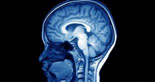 """کشف چهل ژن جدید مرتبط با """"هوش"""""""