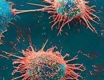 متاستاز-سرطان