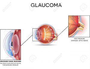 5 300x229 - رویکرد نانو بیوتکنولوژی و درمان بیماری های چشم (eye part 1)