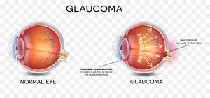 6 300x140 - رویکرد نانو بیوتکنولوژی و درمان بیماری های چشم (eye part 1)